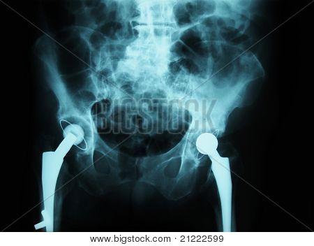 x-ray/ rtg of human pelvis