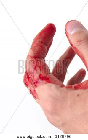 Hand & Blood