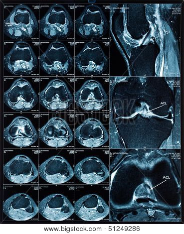 Magnetic resonance tomography (MRT) images of knee