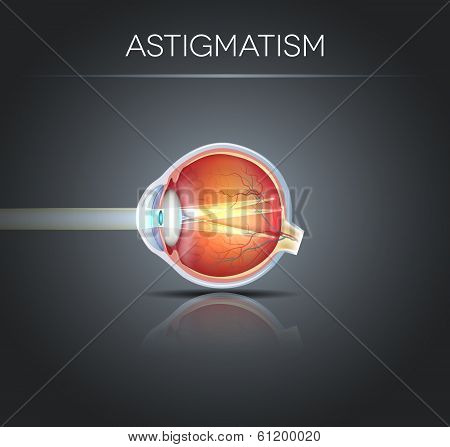 Human Vision Disorder, Astigmatism