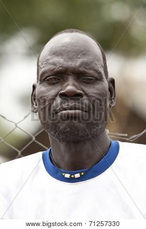 TORIT, SOUTH SUDAN-FEBRUARY 21 2013: Unidentified man with tribal scarification in the town of Torit, South Sudan