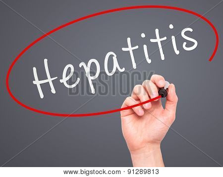 Man Hand writing Hepatitis with marker on transparent wipe board.