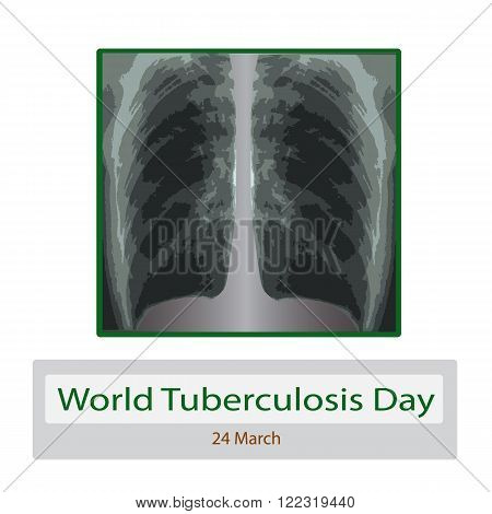 X-rays of light. Diagnosis of tuberculosis. Vector illustration on isolated background