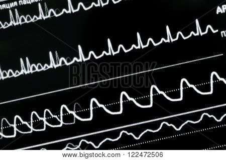Heart rate monitoring in ICU. Close-up photo