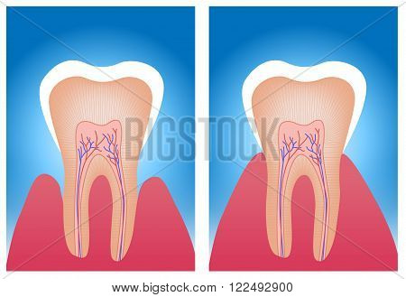 hypersensitive teeth and normal teeth on blue background