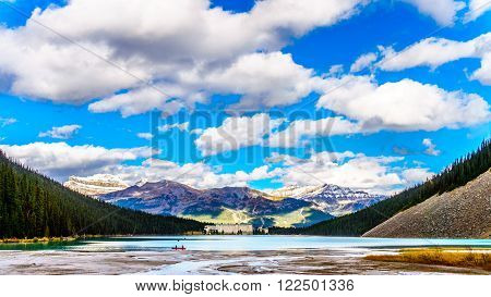 Turquoise water of Lake Louise in Banff National Park in the Canadian Rocky Mountains under a beautiful blue sky with a few clouds
