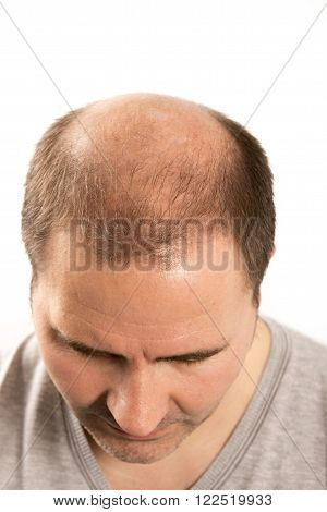 Baldness Alopecia man hair loss haircare white background