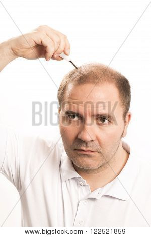 Baldness Alopecia man  mature treatment hand face white background