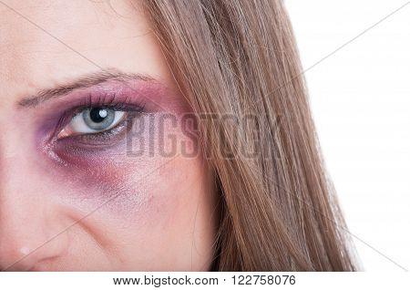 Black Or Bruised Woman Eye