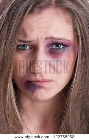 Sad face almost crying of an injured beaten and bruised woman victim of domestic violence