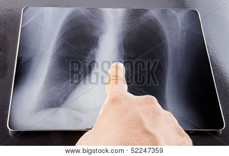Radiography On Tablet