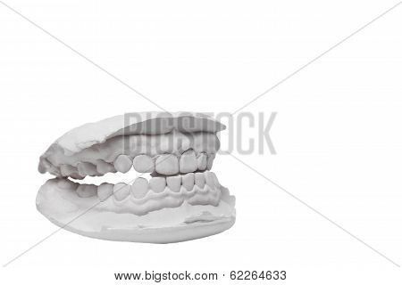 Mould Of Human Teeth