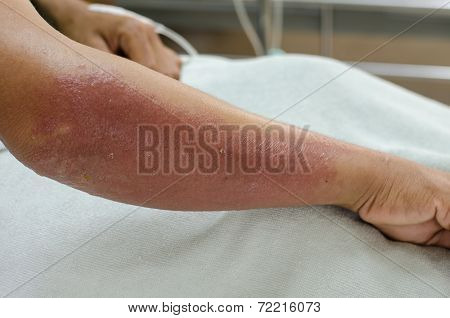Arm Of Patient Allergic To Herbicide