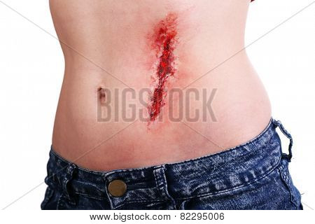 Injured abdomen with blood isolated on white