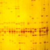 foto of electrophoresis  - Plant DNA fingerprint on acrylamine gel electrophoresis result - JPG