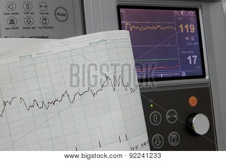 Displaying results of cardiography of fetal heart rate