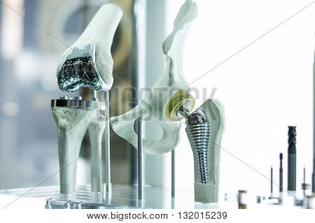 Knee And Hip Prosthesis For Medicine
