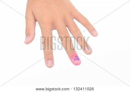 hand with Bruised Nail Isolated on white background