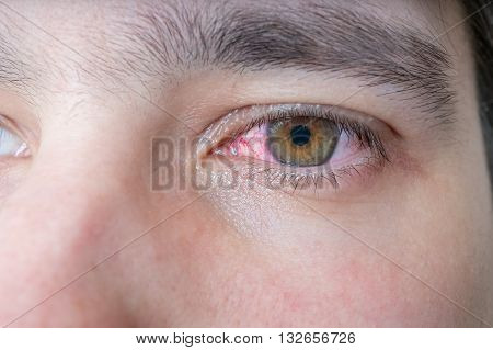 Man with red injured eye. Medicine concept.