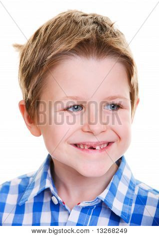 Cute Boy Showing Missing Tooth