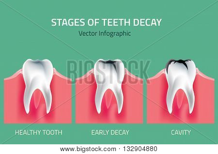 Teeth disease infographic. Gum disease stages. Editable vector illustration in modern style. Medical concept in natural colors on a light green background. Keep your teeth healthy