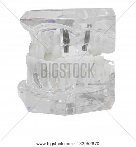 Dental Model of TeethIsolated on white background clipping path in clear plastic so both crown and root form are visible. is perfect for a background or logo