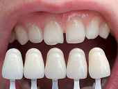 pic of tooth gap  - Shade determination with the help of a shade guide - JPG