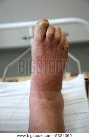 Illness Foot
