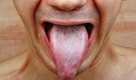 stock photo of syphilis  - Infection tongue disease candida albicans symptom epidemic - JPG