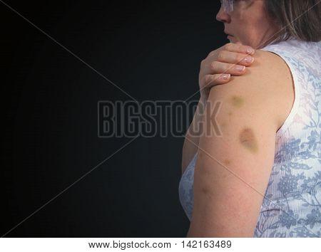 Adult Patient Showing Bruises