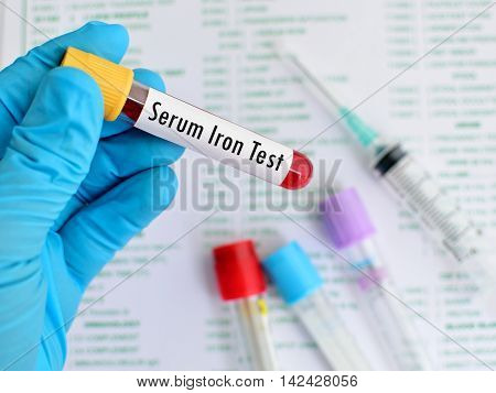 Test tube with blood sample for serum iron test, anemia diagnosis