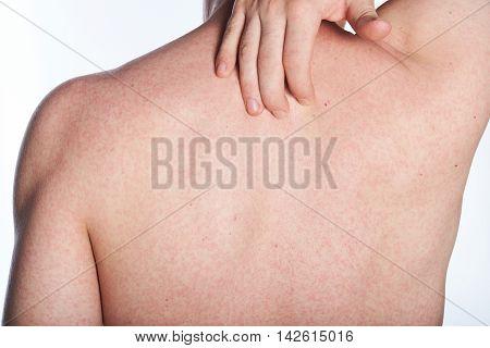 Allergy On Back Of Man