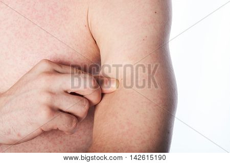 Man With Itchy Skin
