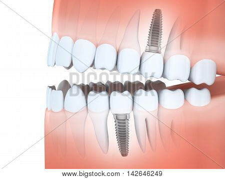 Human jaw and tooth and dental implants (done in 3d rendering)
