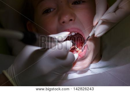 Little girl at paediatric dentist office getting her teeth polished with prophylactic paste by her dentist. Early prevention oral hygiene fear of dentist and milk teeth care concept.