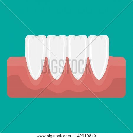 Vector Illustration Incisor Teeth
