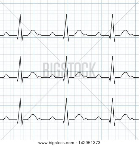 Vector cardiogram, flat design ,Heart Beat and Electrocardiogram