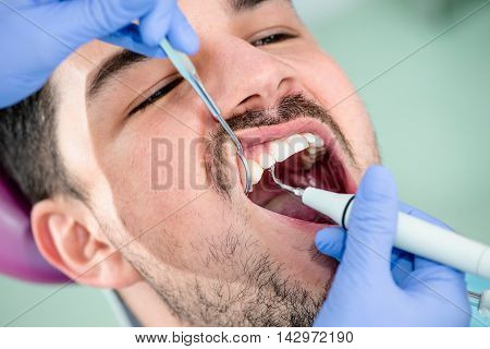 Plaque removal dental care, color image, horizontal