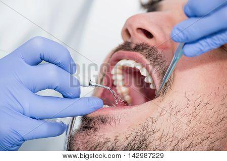 Plaque removal procedure, color image, horizontal image