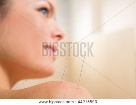 Acupuncture needle pricking on woman shoulder therapy closeup