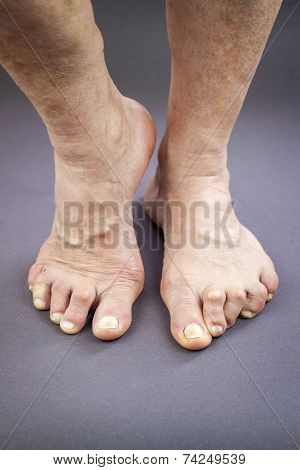 Feet Of Woman Deformed From Rheumatoid Arthritis