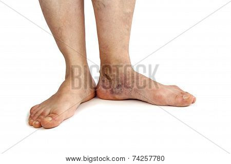 Woman's feet with varicose veins
