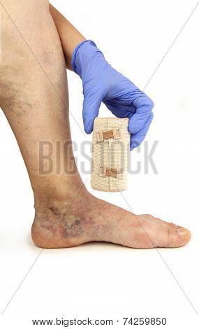 Varicose Veins And Bandage