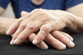 stock photo of deformed  - Hand Of Woman Deformed From Rheumatoid Arthritis