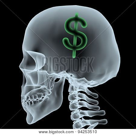X-ray Of A Head With Dollar Symbol