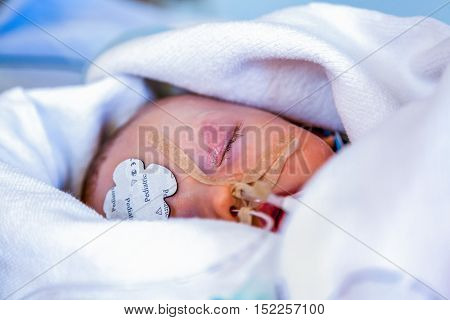 Intensive care, Child infant sedated and wrapped in blankets. Close-up face portrait with shallow depth of field.