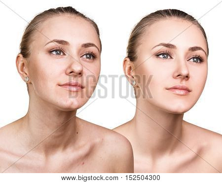 Woman with problem skin before and after treatment