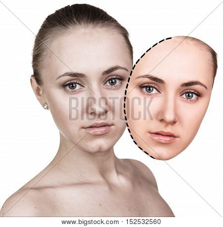 Comparative portrait of female face before and after retouching