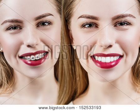 Young woman with perfect teeth before and after braces