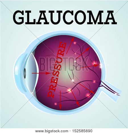 Human Glaucoma disease anatomy structure.Medical infographics for ophthalmology clinic, vector illustration.Cause of disease, eye anatomy - high level pressure, Medical infographics for optician clinic.